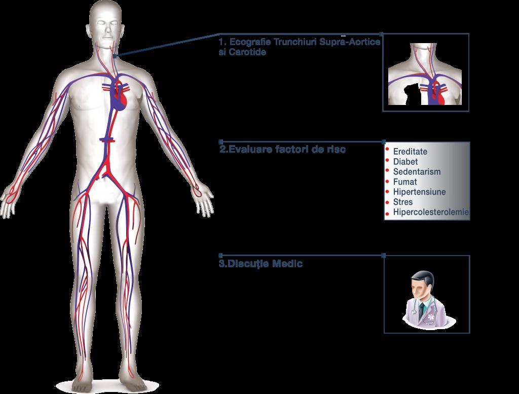 Strategie Prevenție Accident Vascular la Inimed 360º