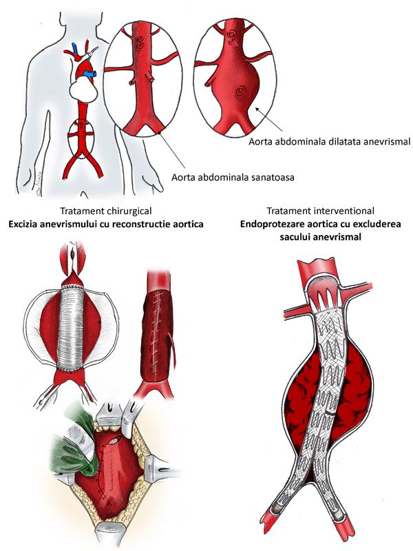 anevrism varicoza