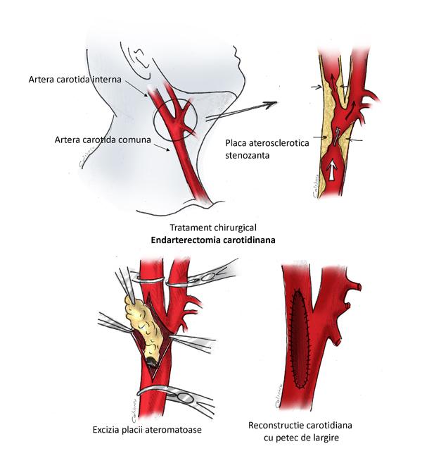 varicoza unei artere carotide