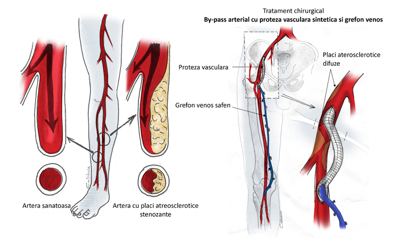 Arteriopatia cronica obliteranta