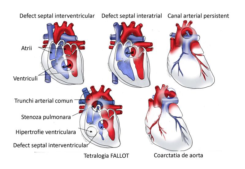 Cardiopatii congenitale