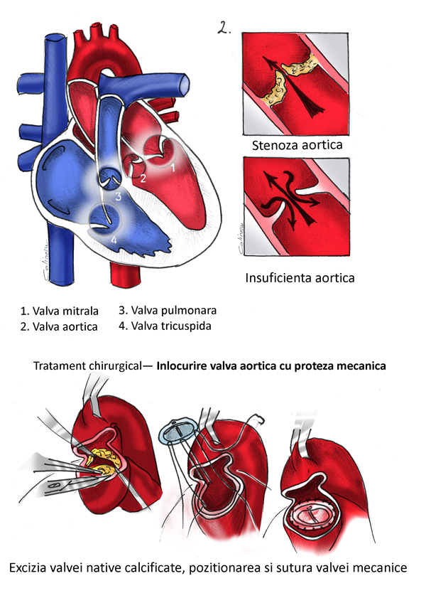 Valvulopatii cardiace