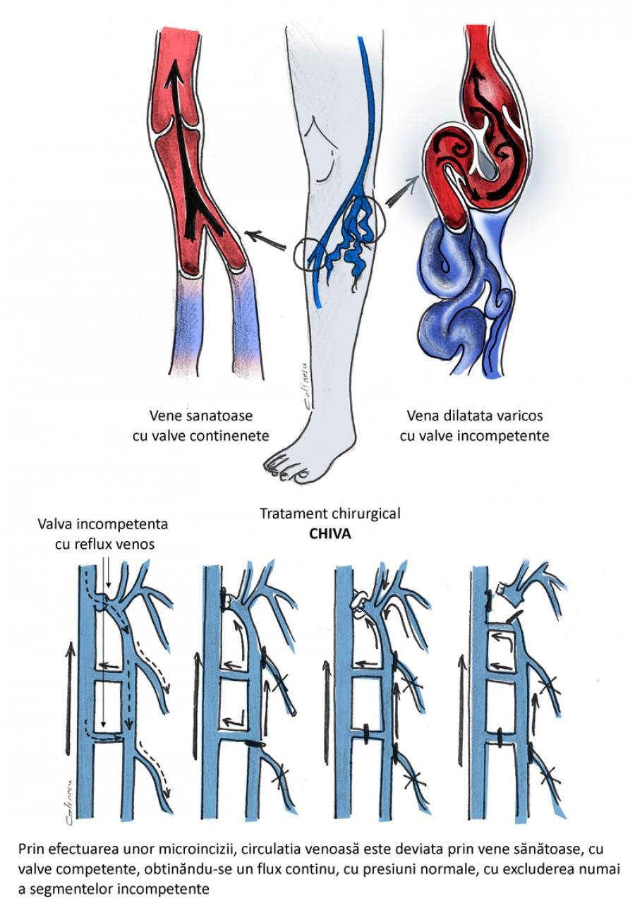 Varice la nivelul picioarelor: simptome și tratament